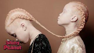NET5 - Warga kulit hitam mengidap albino.