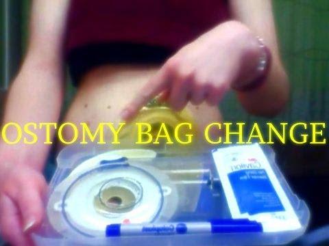 How I Change My Ostomy Bag