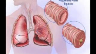 видео Антибиотики при пневмонии у взрослых: название