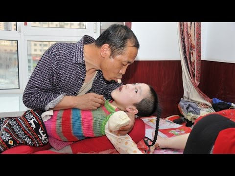 Thumbnail: Parents Feed Cerebral Palsy Daughter Mouth To Mouth: EXTREME LOVE