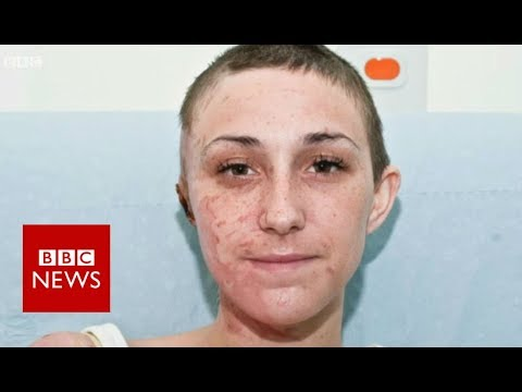 Contained in the hospital treating acid assault scars – BBC Information