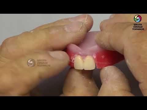 (ПСП 5) Лабораторный этап: Гипсование в артикулятор. Постановка передней группы зубов.