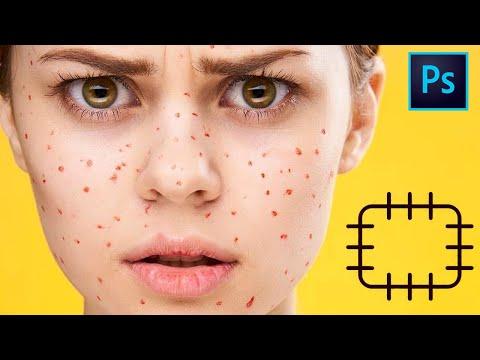 """Инструмент """" Заплатка """" в фотошопе , учимся убирать дефекты на коже с помощью заплатки . Урок 3"""