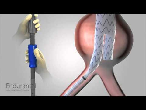 Abdominal Aortic Graft - Medical Animation by Watermark