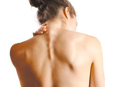 Головокружение при остеохондрозе шейного отдела
