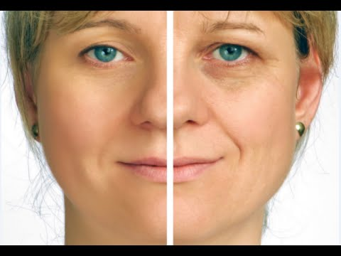 How To Get Rid Of Deep Wrinkles Under Eyes Naturally