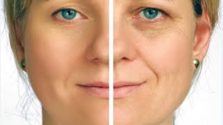 How to Get Rid of Deep Eye Wrinkles