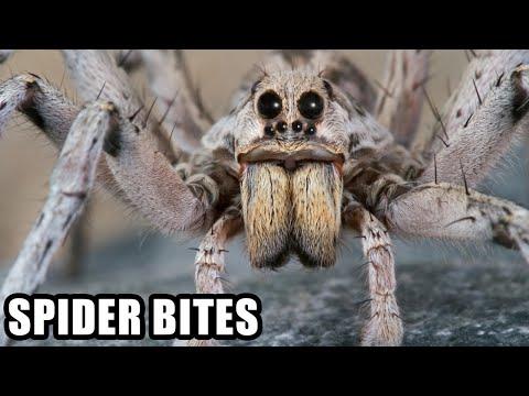 World's Worst Spider Bites; Plus, Spider Vs Snake!