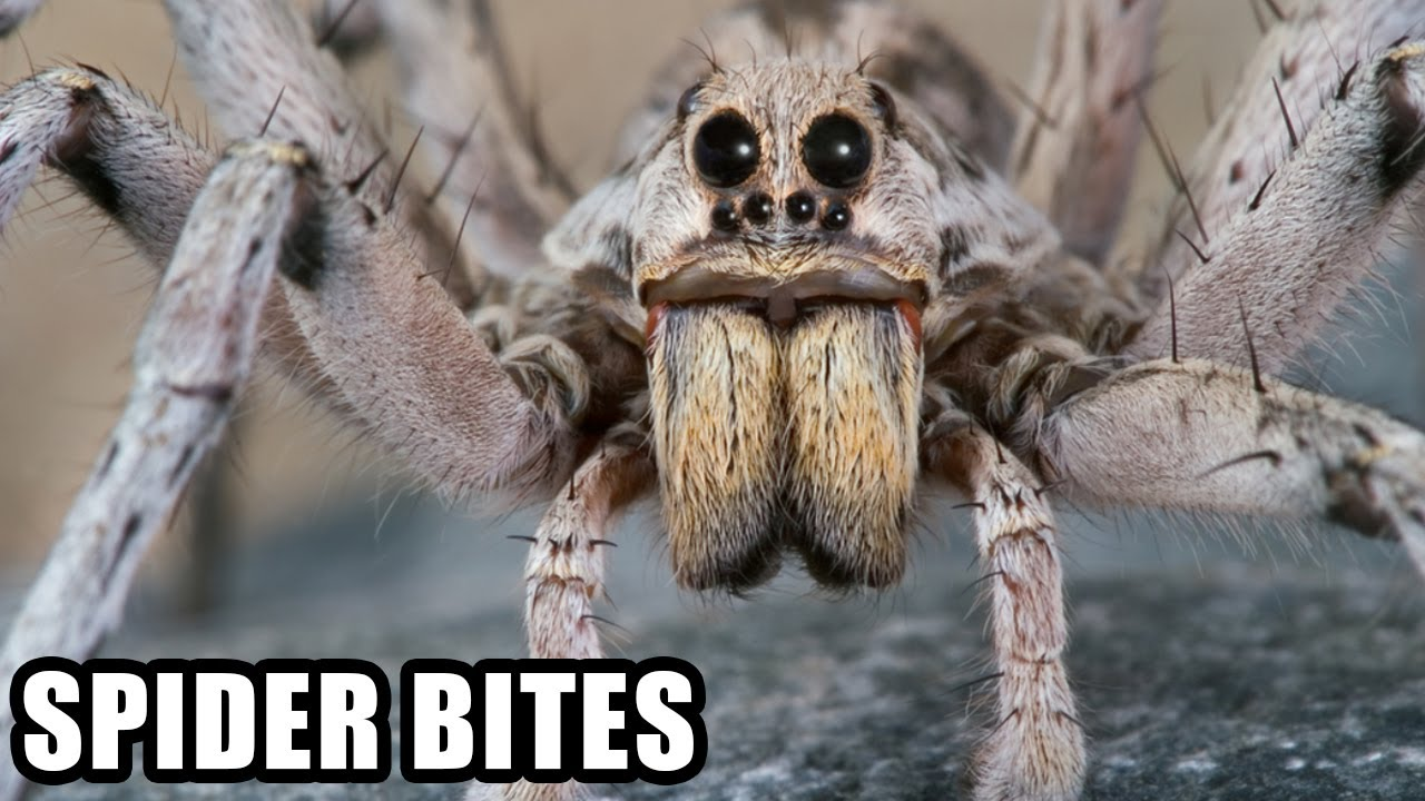World's Worst Spider Bites; Plus, Spider Vs Snake!