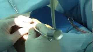 видео Что такое остеотомия