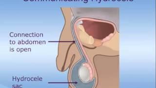 Hydrocele Repair In Children