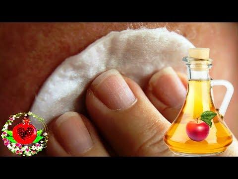4 причины, по которым вы должны умывать лицо яблочным уксусом!