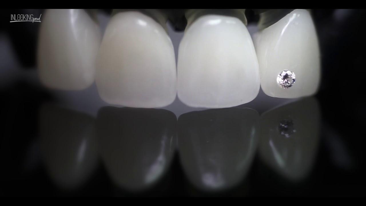 общедоступных бриллиант на зубах фото протяжении многих