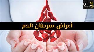 أهم أعراض سرطان الدم Youtube