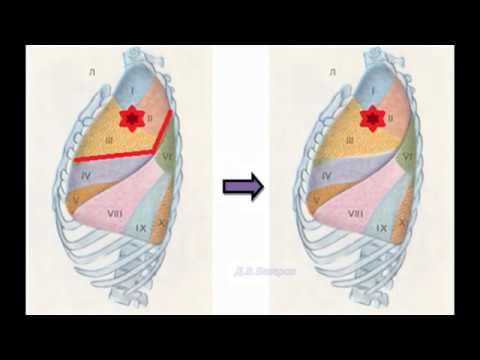 Органосберегающие операции при раке легкого (РНЦХ)