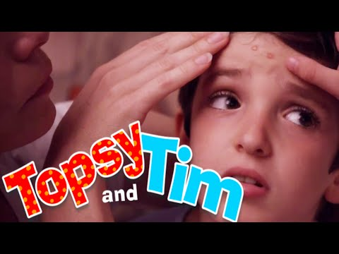 Topsy & Tim 125 - CHICKEN POX | Topsy and Tim Full Episodes