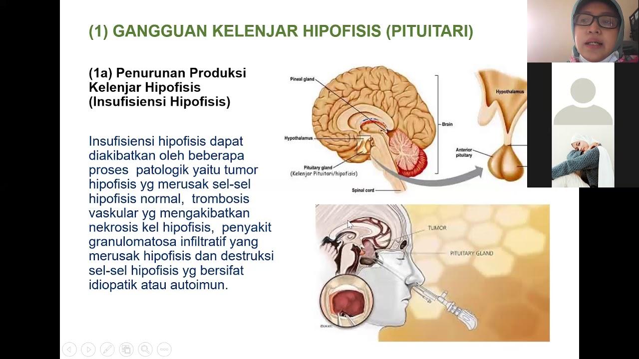 Madár hisztomoniasis. Histomoniasis pulyka baromfiban: tünetek és kezelés