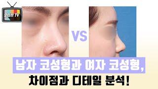 [모티브 성형외과] 남자코성형VS여자코성형, 차이점은?…