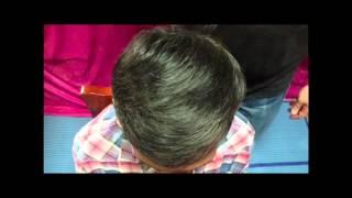 ผู้ใช้ Samson Hair Fibers 1https://www.facebook.com/hairfiberskeratin/?fref=nf thumbnail