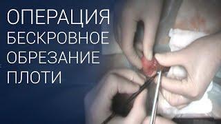 Операция обрезание крайней плоти у мужчин ✅ БЕЗ КРОВИ 18+