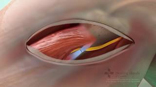 Common Peroneal Nerve Decompression | Single Cell Animation