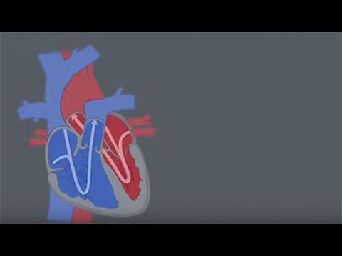 Congenital Heart Defects (CHDs)