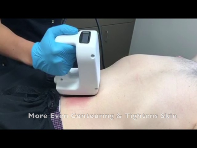 Colorado Springs Non-Surgical Fat Removal With BodyFX By Dr  John Burroughs