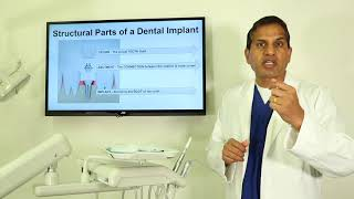 The Different Structural Parts of a Dental Implant - AAP Board Certified Surgeon Dr Vadivel DDS