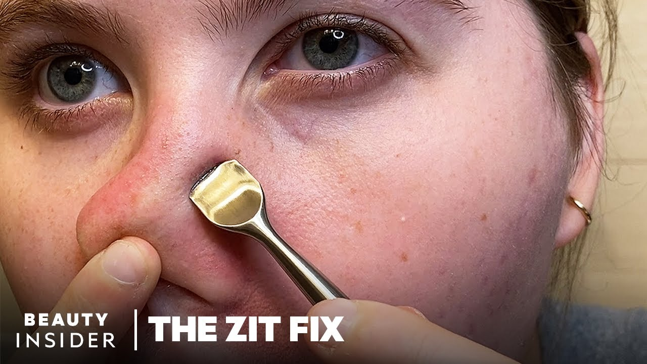 Curved Spatula Scrapes Gunk From Pores   The Zit Fix
