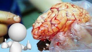 Как стать умнее. Полезная еда для мозга.