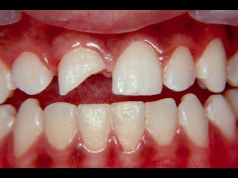 Fratura Dentaria O Que Fazer Se O Dente Quebrar Trauma Facial