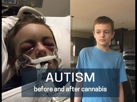 Episode 118: Cannabis Nothing Short of Miracle For Boy With Severe Autism And Seizure Disorder