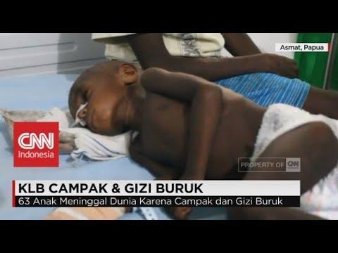 Darurat! Penderita Gizi Buruk di Asmat Meningkat, TNI Kirim Bantuan Lewat Laut