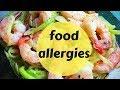 Preparing schools for food allergies