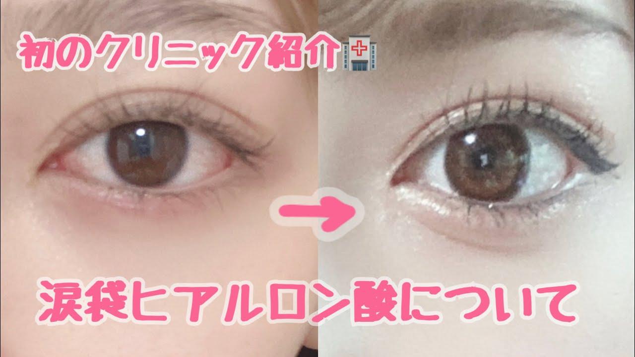 涙 袋 ヒアルロン 酸 「涙袋はヒアルロン酸でつくれる! 即効で魅力的な目元を手に入れる方法とは」