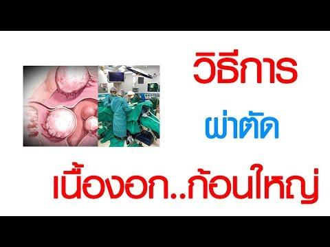พบหมอเสรี ตอนที่ 302 : วิธีการ ผ่าตัด เนื้องอกมดลูกขนาดใหญ่