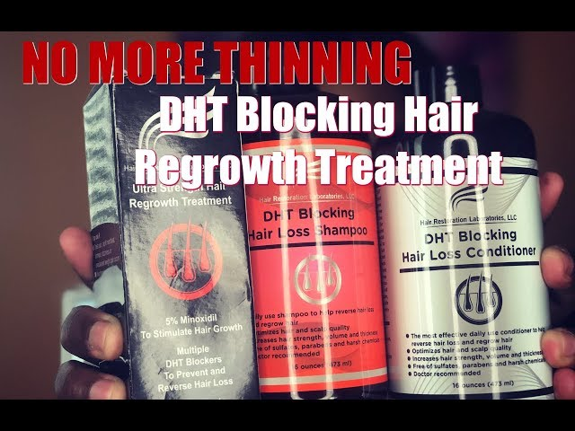 NO More Thinning Hair Restoration Laboratories Regrowth Treatment || Vicariously Me