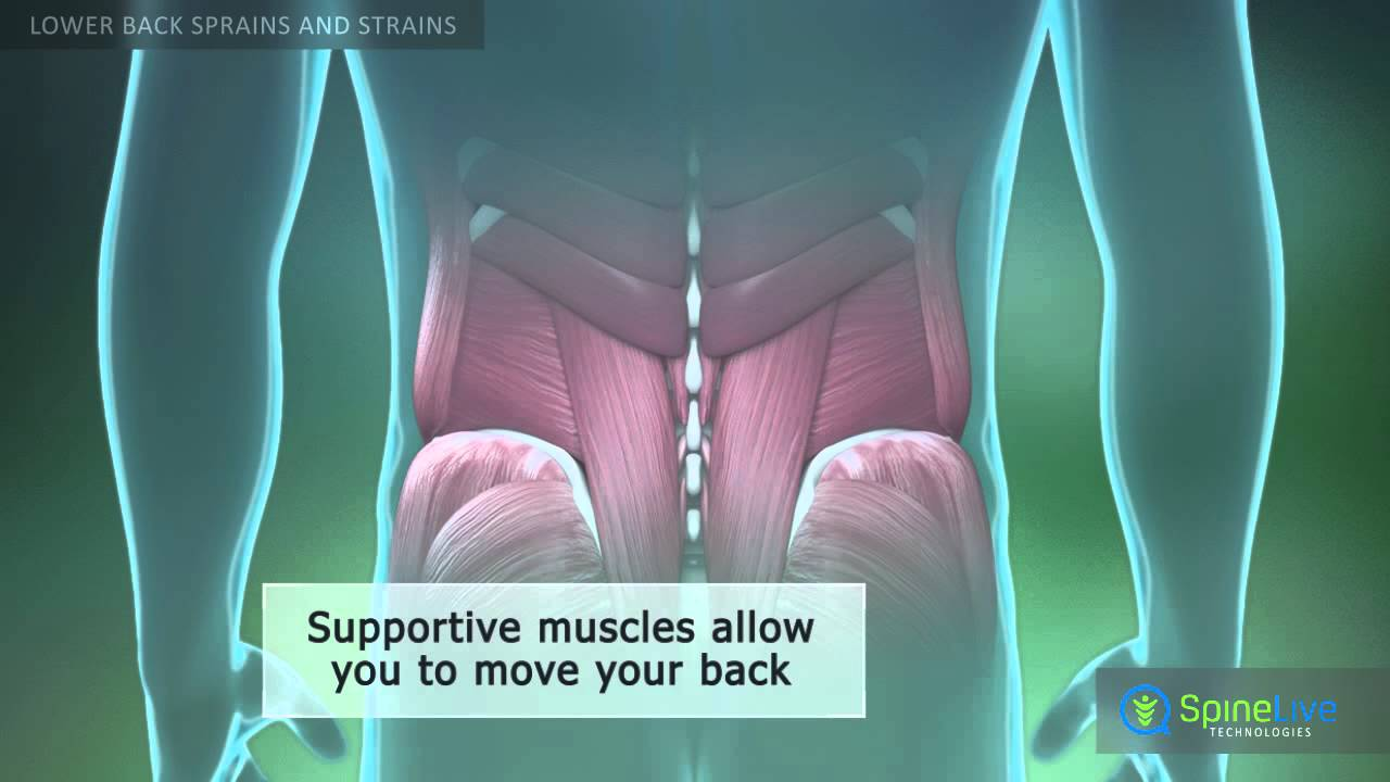 Lower Back Sprains And Strains Youtube