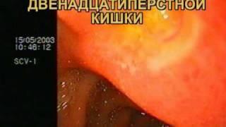 Язва луковицы двенадцатиперстной кишки. ФЭГДС.(21.11.2010 готовился к теоретическим занятиям с медицинскими сёстрами эндоскопических отделений и кабинетов..., 2010-11-21T21:53:00.000Z)