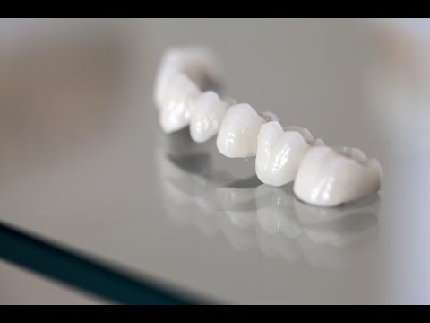 Different Types of Dental Bridges and Care Tips