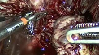 Laparoscopic Management of Severe Endometriosis