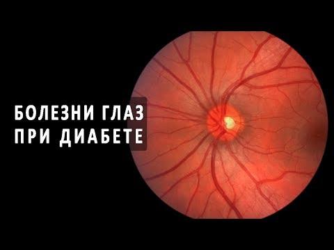 Поражение сетчатки глаза при диабете