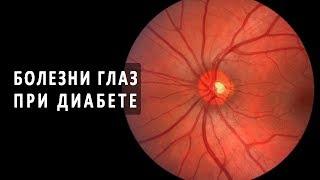 Сахарный диабет как причина глазных болезней