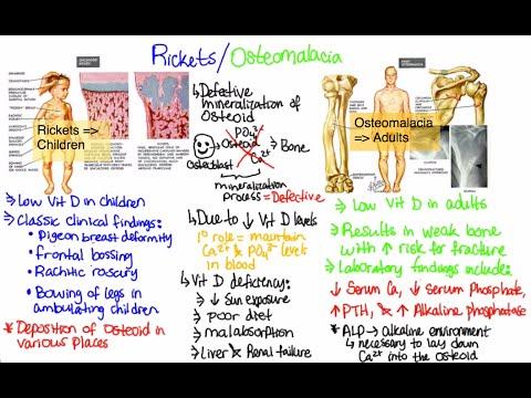 what is rickets/osteomalacia?! - youtube, Skeleton