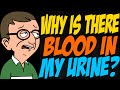 Why is there Blood in My Urine?