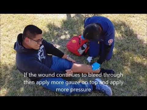 First Aid: How to Treat an Open Wound (Pablo and Celest)