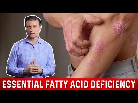 Essential Fatty Acid Deficiency