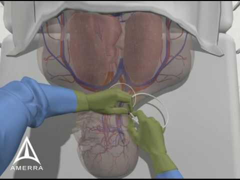 Central Line Procedure - 3D Medical Animation