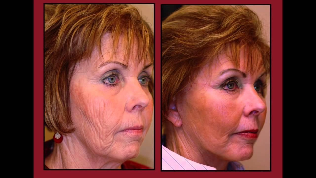 About Scott Thompson Facial Plastic Surgery