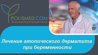 Лечение атопического дерматита при беременности: препараты и диета